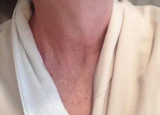 So my neck looks like this