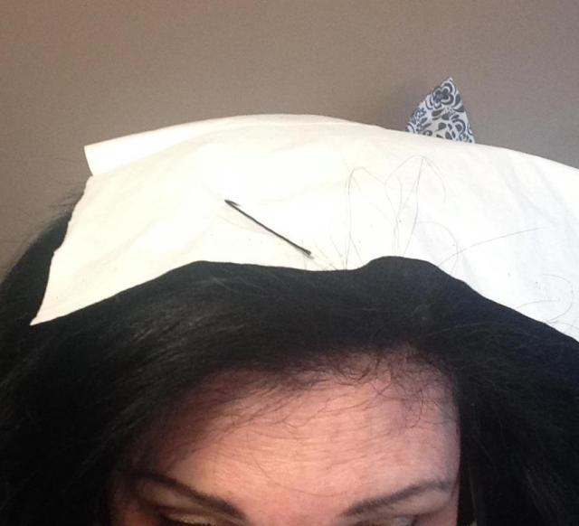 Tissue and bobby pin on the head