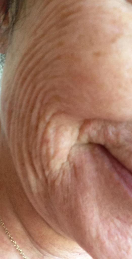 Wrinkled like a raisin.
