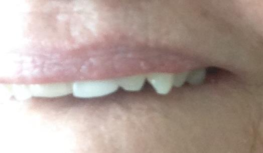 My fang