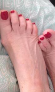 My aching feet
