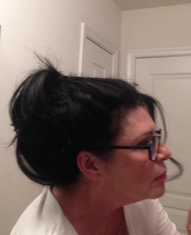 With extensions. Side view of hair pulled back in twirly do. Is there a doctor who can lift my chin